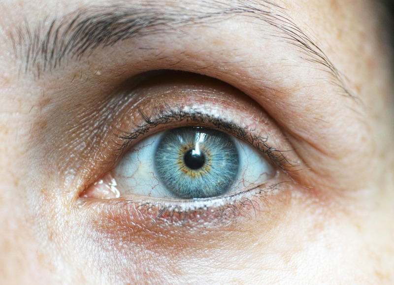 a woman with dark circles under her eyes