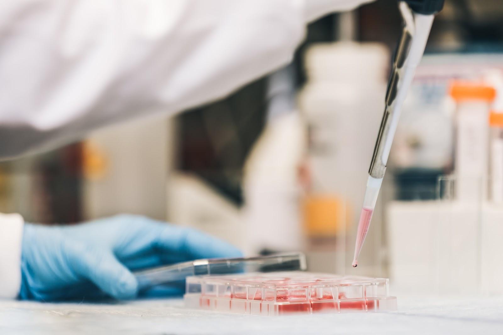H.Pylori lab testing