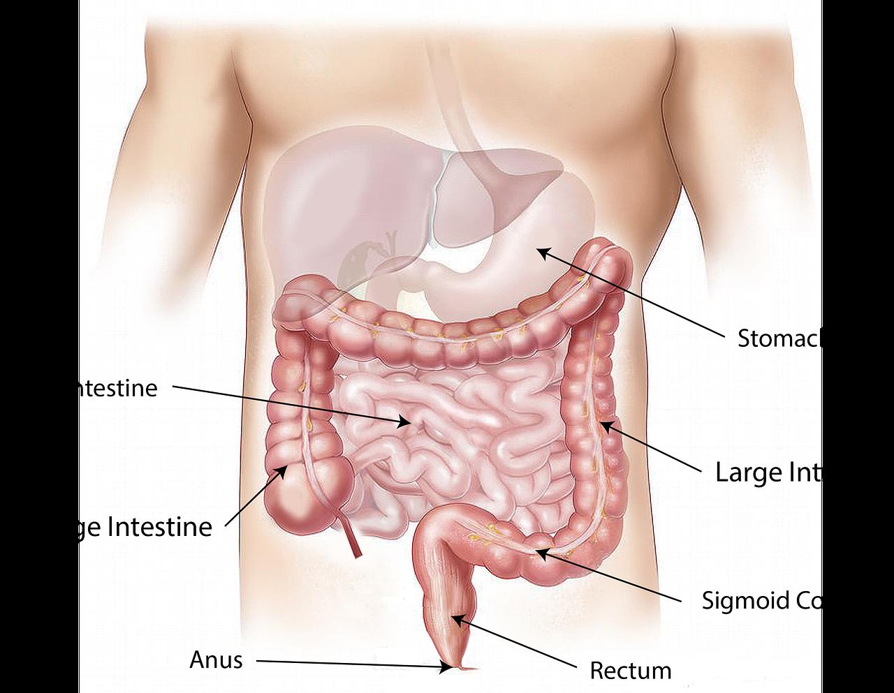 H pylori bacteria infections