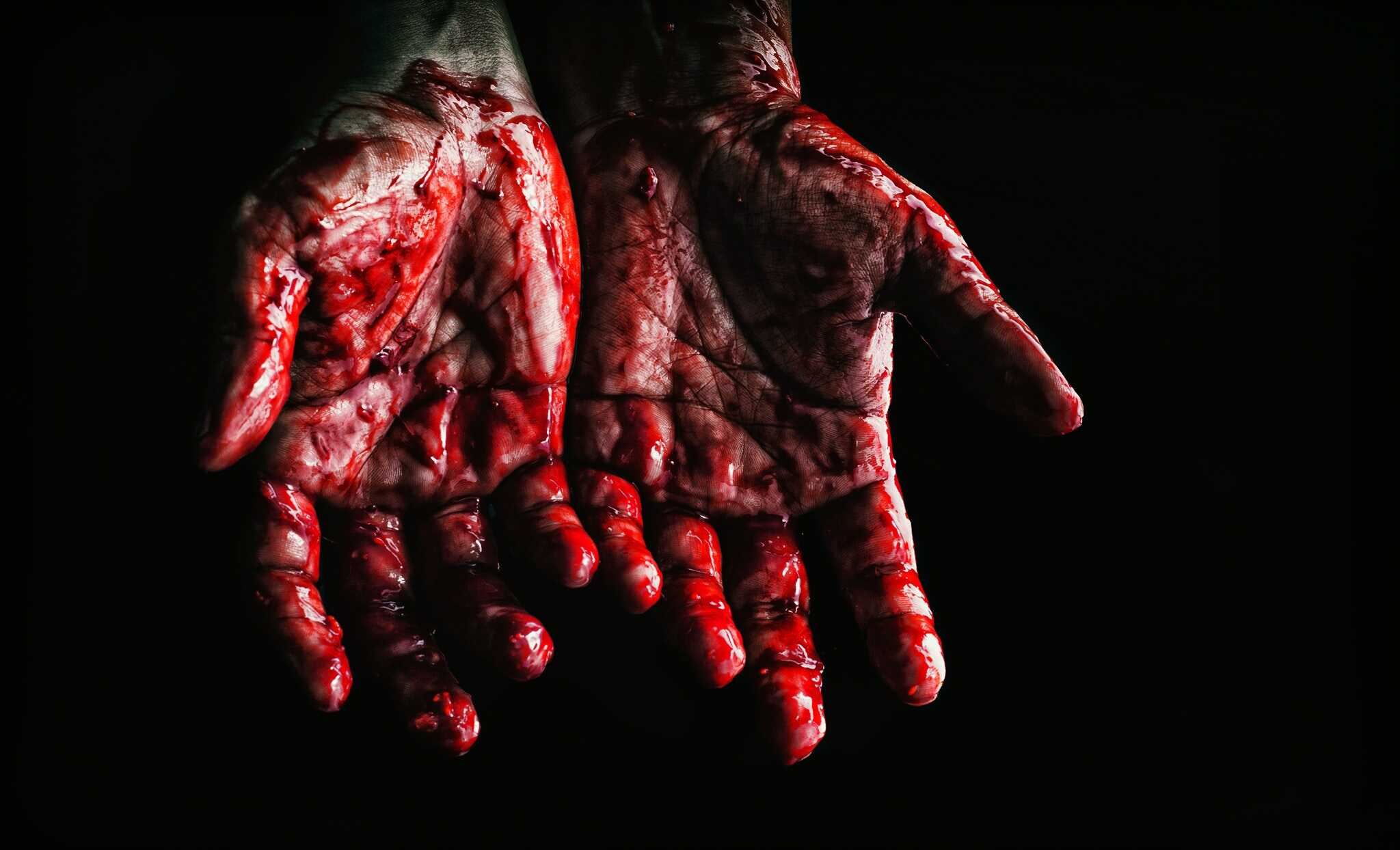 a bloody hand