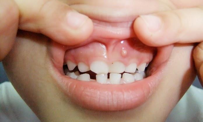 Gum Boil Home Treatment