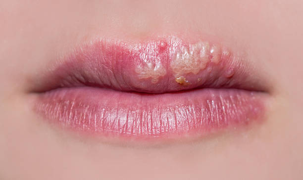 Help Canker Sores